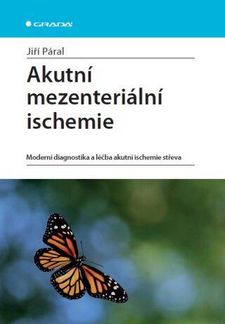 Akutní mezenteriální ischemie - Jiří Páral - e-kniha