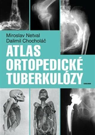 Atlas ortopedické tuberkulózy - Dalimil Chocholáč, Miroslav Netval
