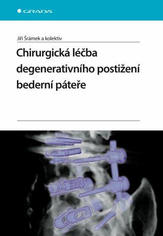 Chirurgická léčba degenerativního postižení bederní páteře - Jiří Šrámek, kolektiv a - e-kniha