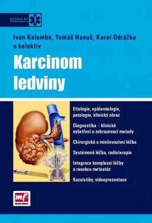 Karcinom ledviny - Ivan Kolombo; Tomáš Hanuš; Karel Odrážka