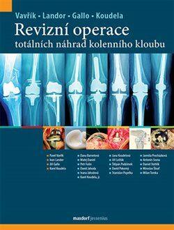 Revizní operace totálních náhrad kolenního kloubu - Kolektiv