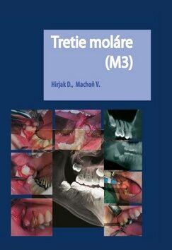 Tretie moláre (M3) - Vladimír Machoň, Dušan Hirjak