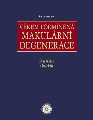 Věkem podmíněná makulární degenerace - Petr Kolář, kolektiv a - e-kniha