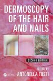 Dermoscopy of the Hair and Nails2nd Edition - Antonella Tosti