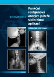 Funkční rentgenová analýza páteře s klinickou aplikací - Eva Rychlíková
