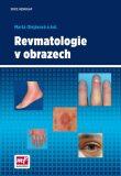 Revmatologie v obrazech - Mudr. Marta Olejárová