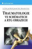 Traumatologie ve schématech a RTG obrazech - Alexander Ferko,  Ivo Žvák, ...