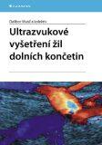 Ultrazvukové vyšetření žil dolních končetin - Dalibor Musil